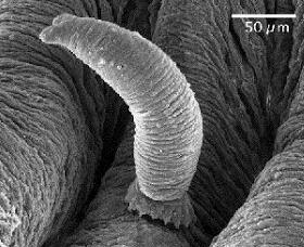 海水魚に寄生する寄生虫